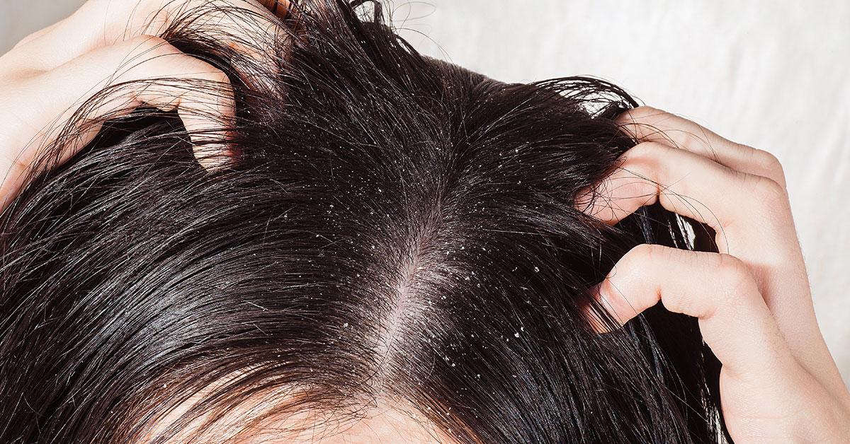 ayurvedic hair oil for dandruff - pankajakasthuri